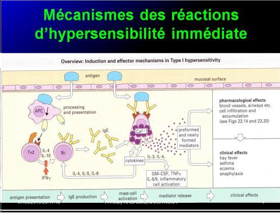 Images sélectionnées réactions d'hypersensibilité4