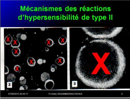Images sélectionnées réactions d'hypersensibilité7