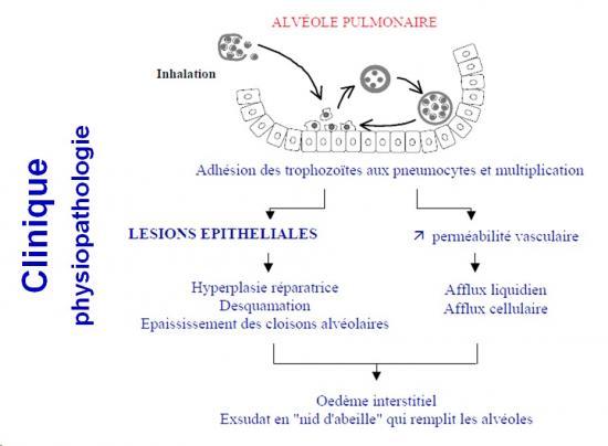 Pneumocystis et pneumocystose 4