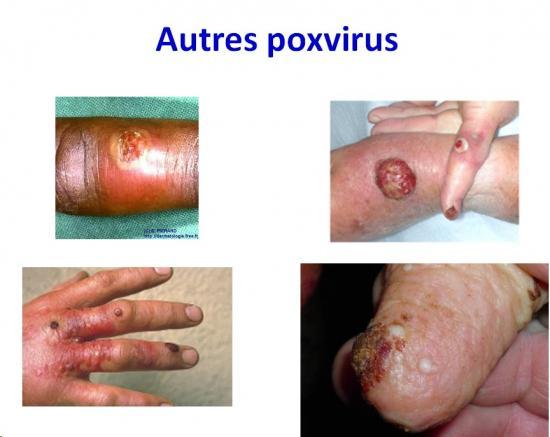 Poxviridae 9