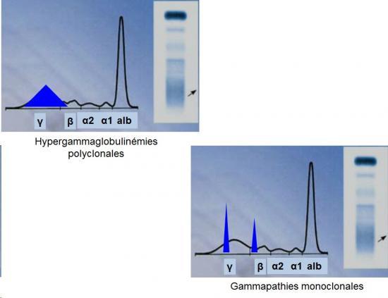 Protéines plasmatiques 10