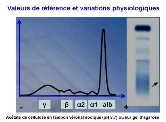Protéines plasmatiques 3