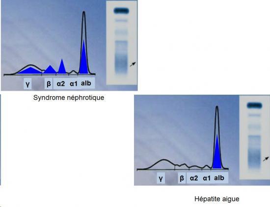 Protéines plasmatiques 7