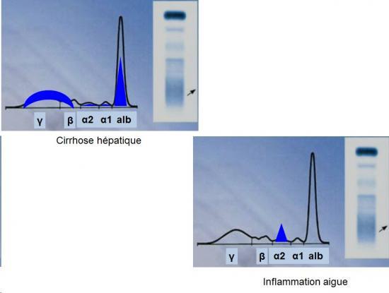 Protéines plasmatiques 8