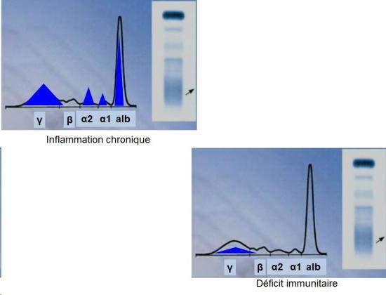 Protéines plasmatiques 9