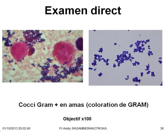 Staphylococcus et infections à staphylocoques 6