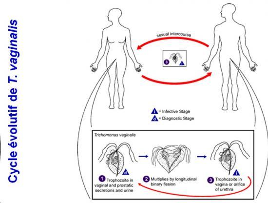 Trichomonas vaginalis et trichomonose (3)
