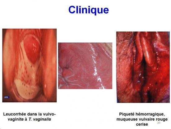 Trichomonas vaginalis et trichomonose (4)